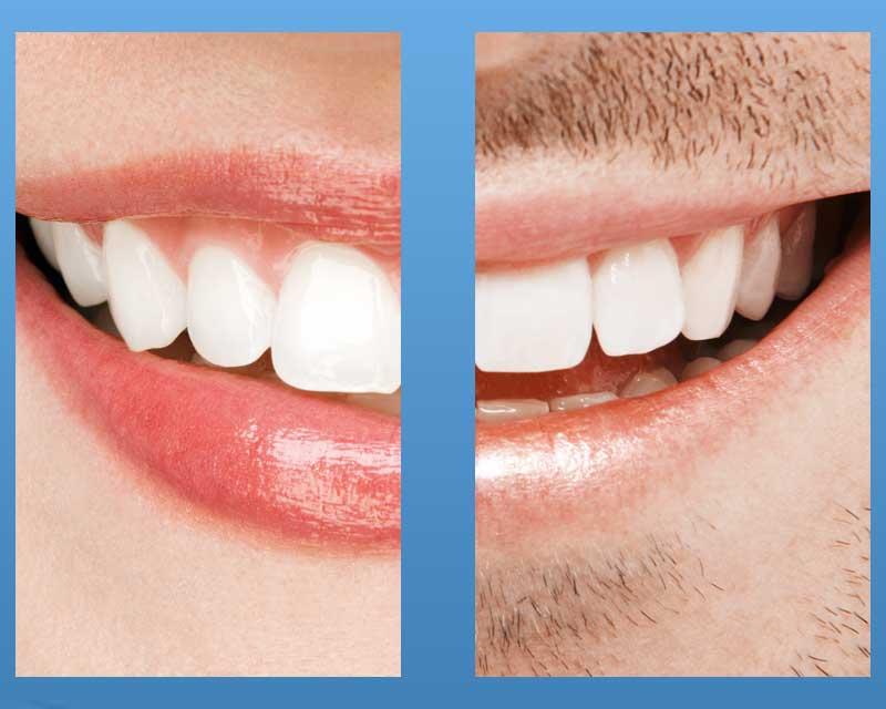 Zahnersatzsparen
