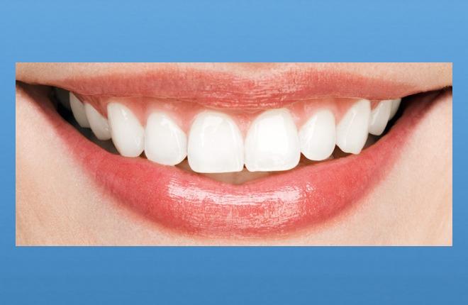 Effizientes Zahnersatzsparen